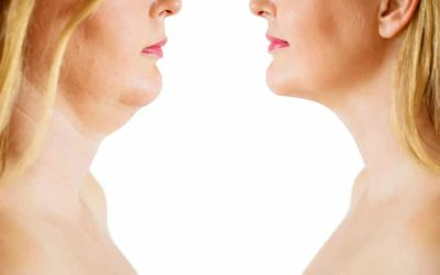 How does liposuction work in the chin and face area?