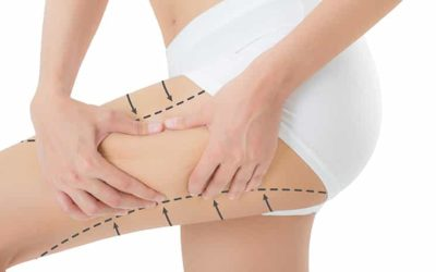 Liposuction on the thighs promotes health!